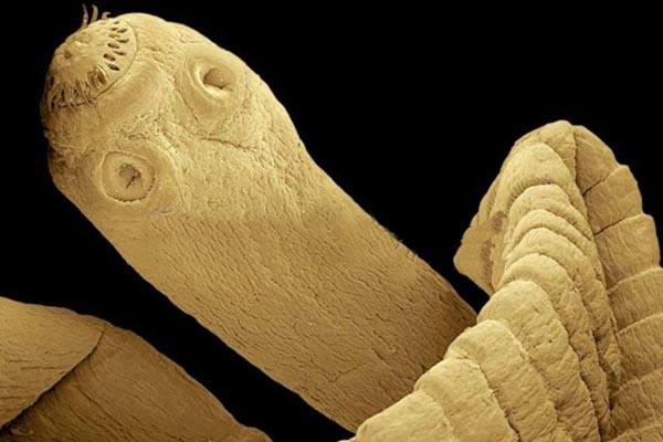паразиты в селедке опасны для человека